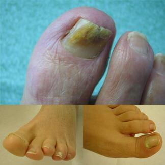 Quando le unghie si ammalano