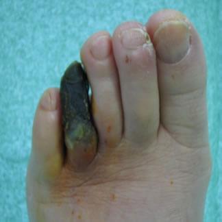 Unghie irregolari su pollici di trattamento di mani
